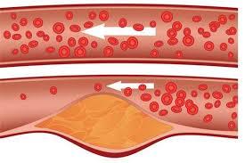 снизился холестерин в крови